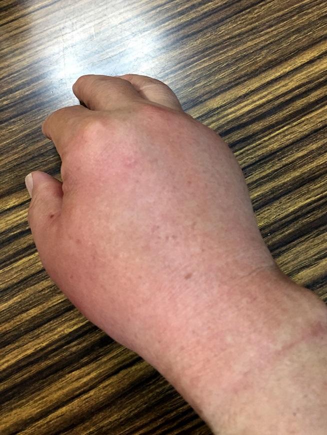 蜂に刺された手